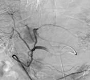 通常の血管造影画像